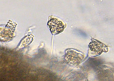 Stalked Ciliate under Microscope in Wastewater