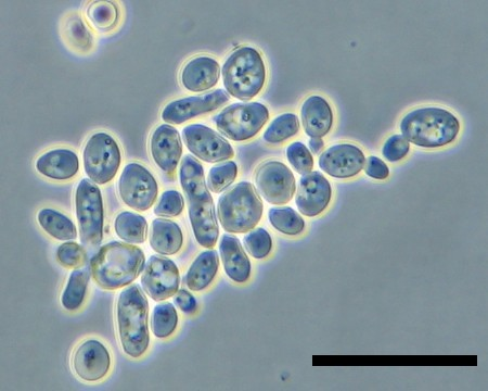 Yeast cells under the microscope
