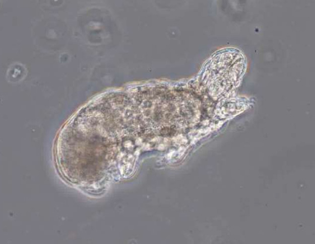 Waterbear in wastewater under the microscope