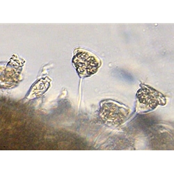 Wastewater Treatment Organism Identification