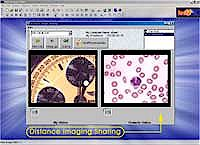 software distance image sharing feature